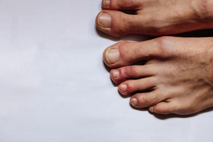Jedním z příznaků koronaviru můžou být i kožní potíže.