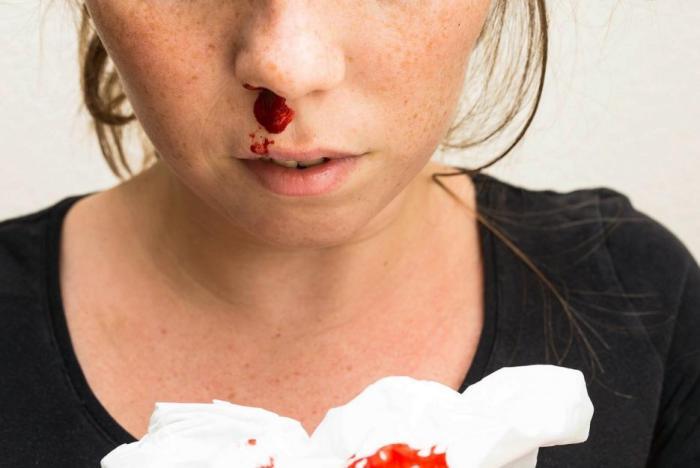 Časté krvácení z nosu nemusí nic znamenat, ale může.