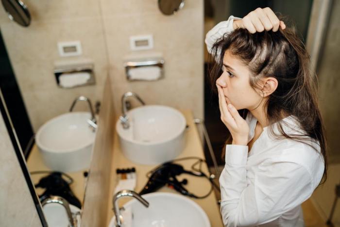 Vypadávání vlasů nebolí, ale je psychicky náročné.